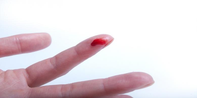 Cara mengatasi luka sayat atau gores