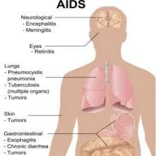 Transfer Factor Plus untuk Penderita HIV / AIDS
